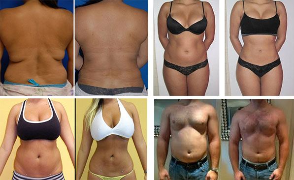 Bergen County before and after weight loss pictures