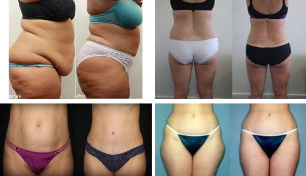 Morris County cellulite reduction and body contouring picture